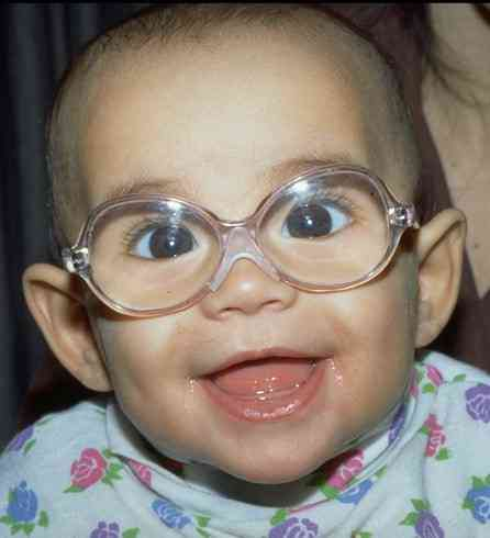D Glasses For Amblyopia